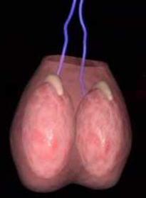 cyste testikel